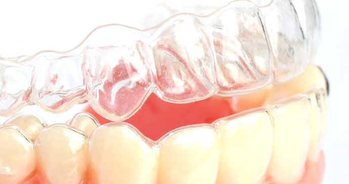 Стоматологи «Олимпа Здоровья» предлагают альтернативу брекетам