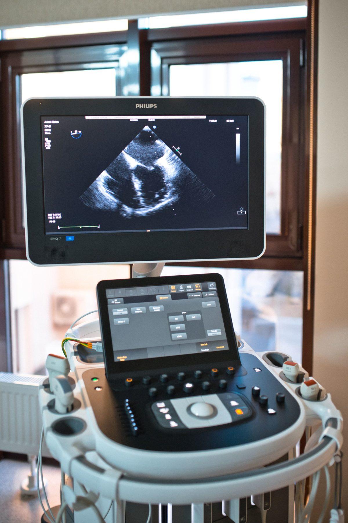 УЗИ в «Олимпе Здоровья» выполняются на ультрасовременных сканерах