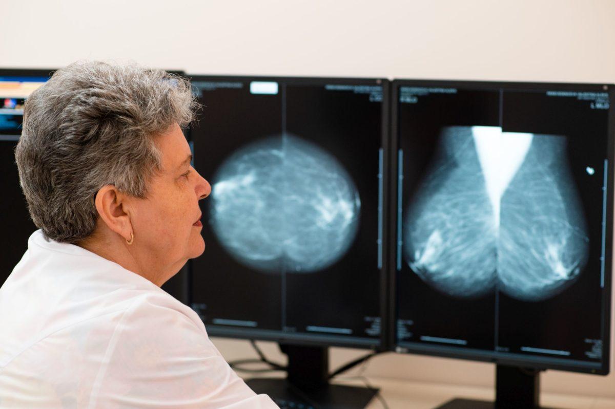 Дуктография в «Олимпе Здоровья» способствует ранней диагностике рака груди