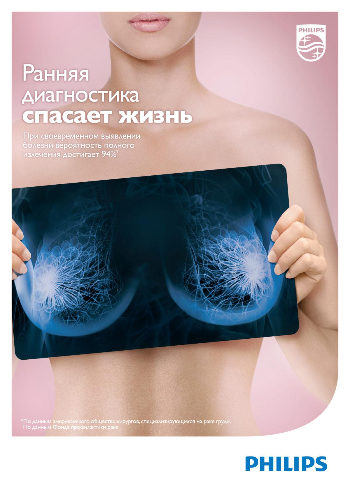 #ЯПРОШЛА: «Олимп Здоровья» выступил партнером социальной инициативы против рака груди